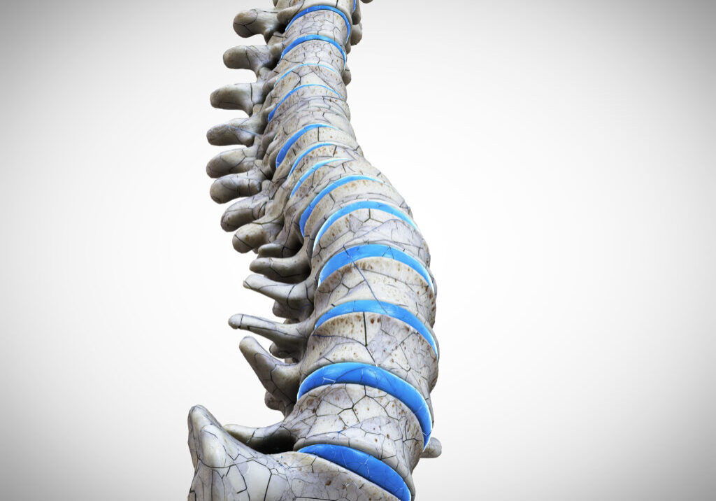3d rendered medically accurate illustration of a broken spine